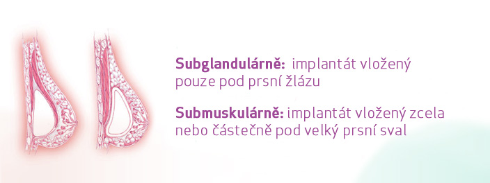 implant_placement_slide01