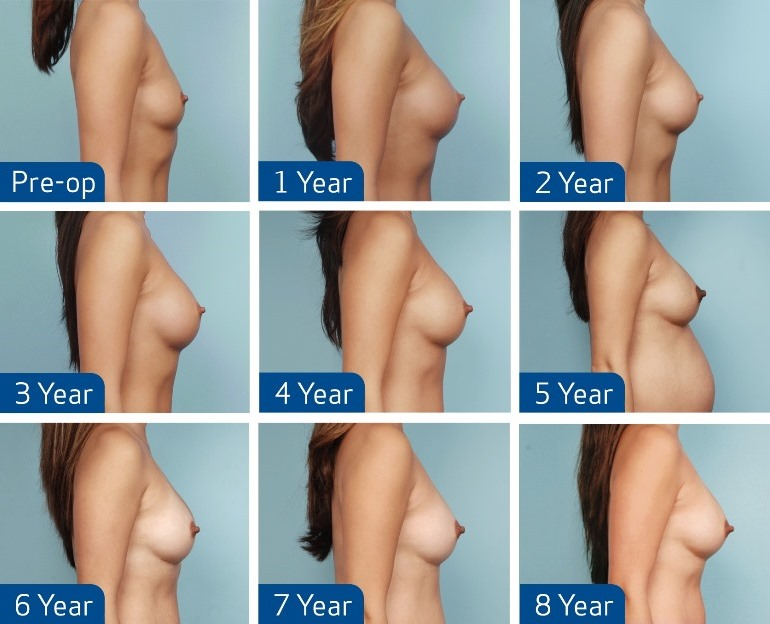 Form-stable Breast Implants MENTOR® CPG - Dr. S. Teitelbaum